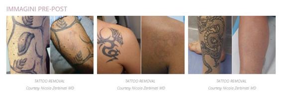 tatuaggi1